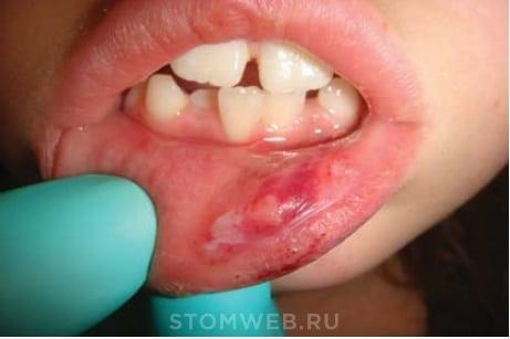 Анестезия при лечении зубов у детей