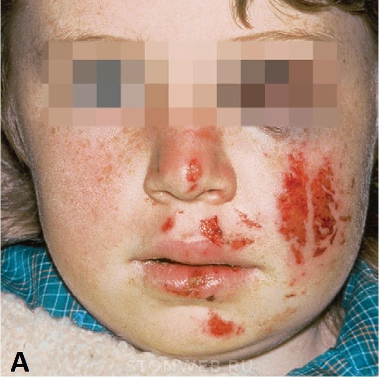 Травма височно-нижнечелюстного сустава асимметрия лица после удара рентген височно-нижнечелюстной сустава