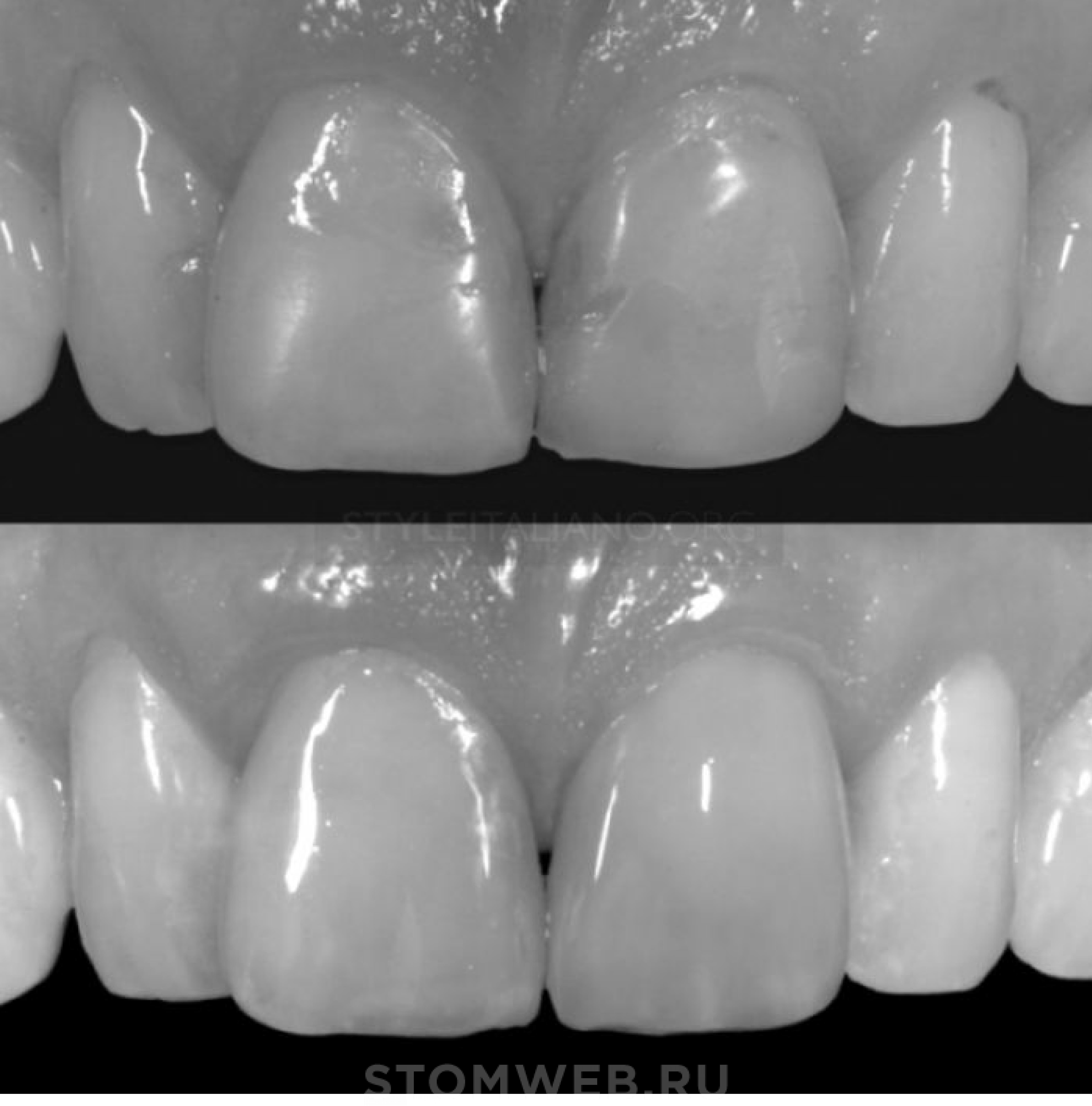 прямые виниры фронтальных зубов
