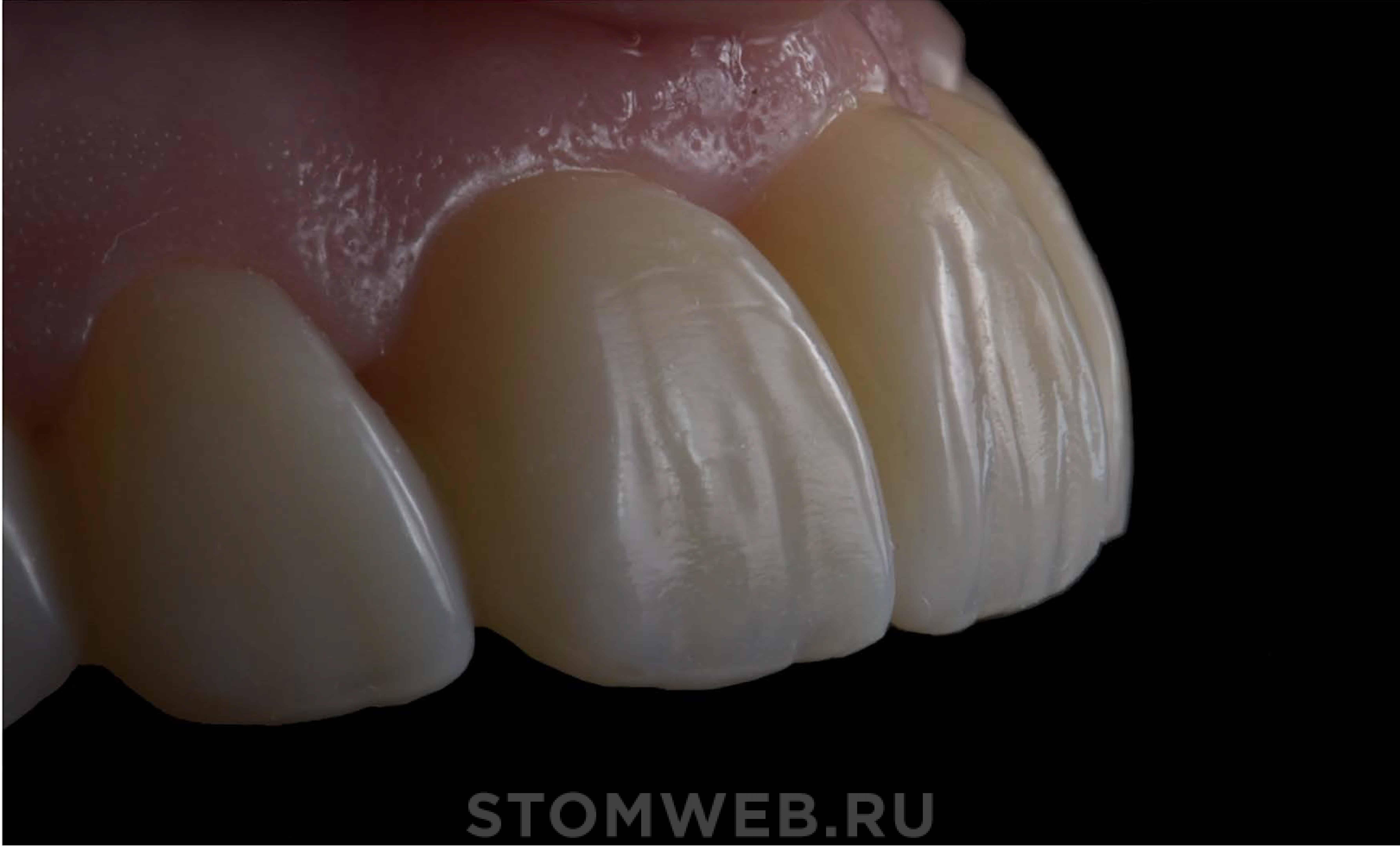 максимальное отбеливание зубов