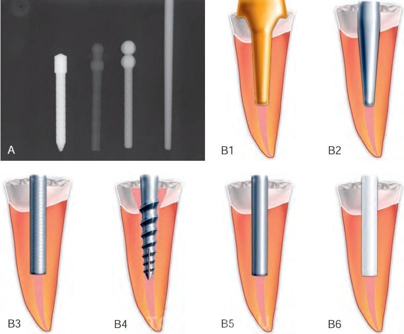 Штифты в стоматологии картинки