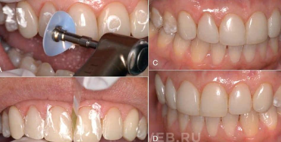 Бондинг стоматология — Болезни полости рта