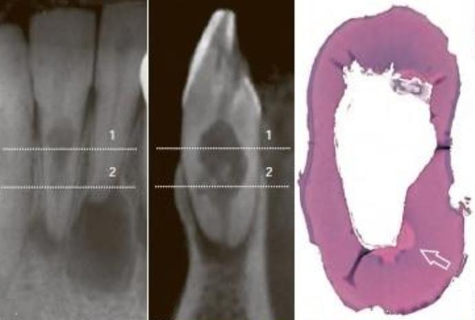 Что такое резорбция корня зуба и почему она возникает