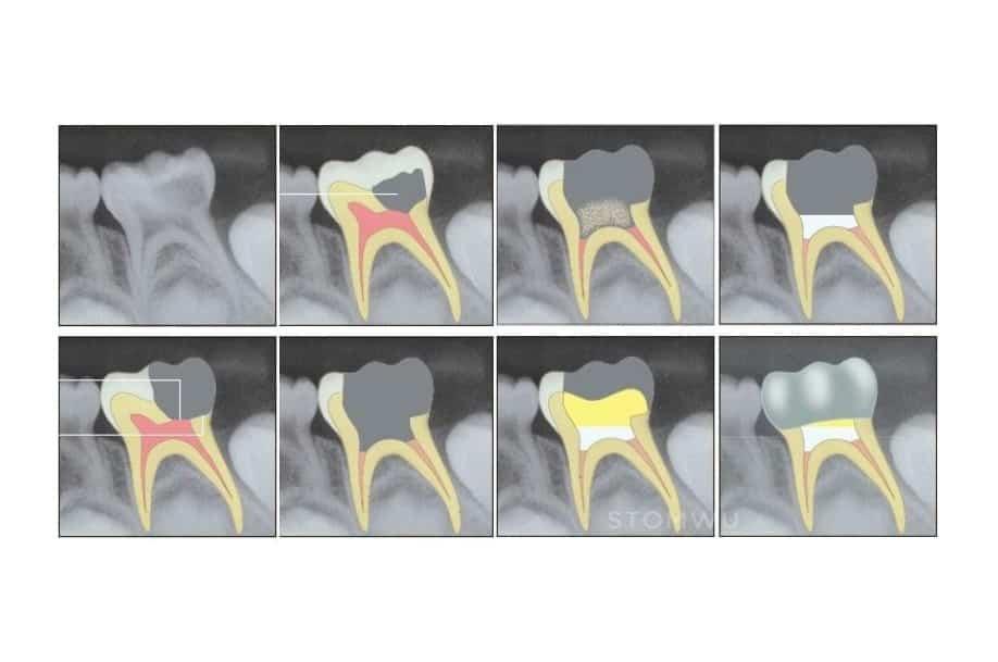 STOMWEB - Статья - Лечение пульпы молочных и несформированных постоянных зубов