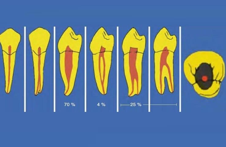 Расположение корневых каналов в зубах
