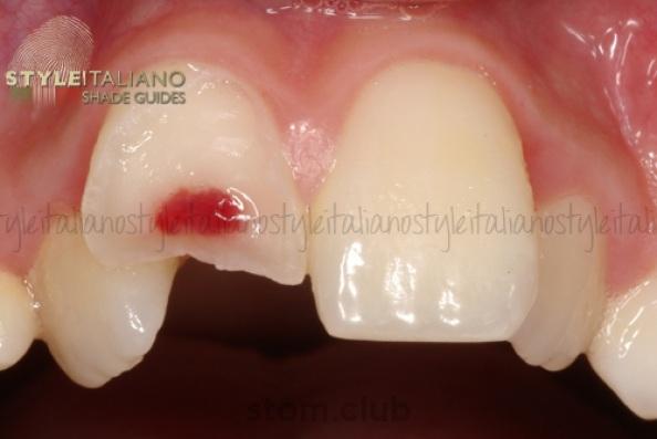 Дефекты коронок зубов классификация